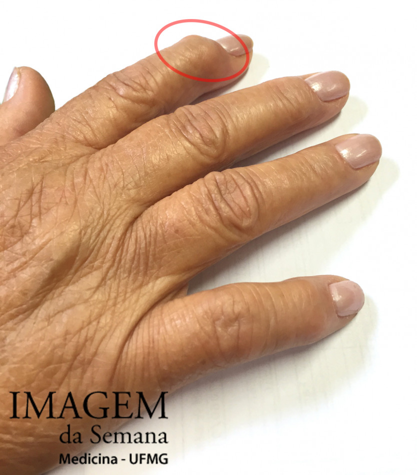inflamația articulațiilor falangei degetelor
