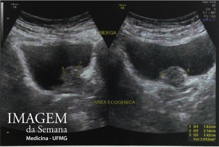 ultrassonografia prostata via abdominal